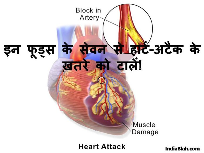 Heart Attack Se Bachne ke Upay in Hindi